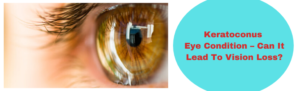 Keratoconus Eye Condition – Can It Lead To Vision Loss?