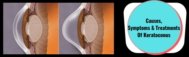 Causes, Symptoms & Treatments Of Keratoconus