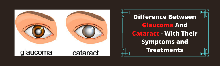 Difference Between Glaucoma And Cataract - With Their Symptoms and Treatments