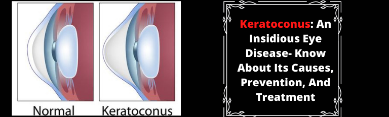 Keratoconus_ An Insidious Eye Disease- Know About Its Causes, Prevention, And Treatment